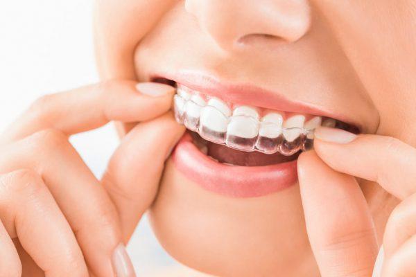 Aparat ortodontyczny bez drutow – czy to mozliwe Nowoczesny metody w leczeniu ortodontycznym